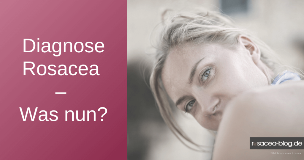 Diagnose Rosacea- Was nun?