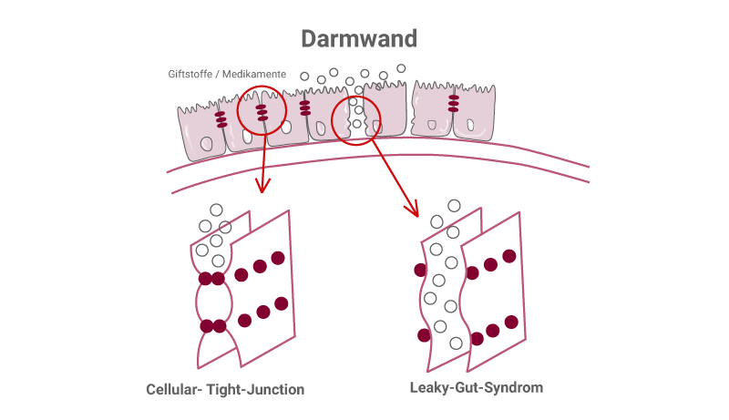 Darmwand mit Leaky-Gut-Syndrom